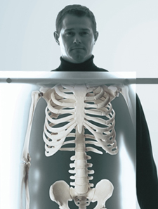 Rather than lying down, we want X-ray views showing your body in a weight-bearing position.